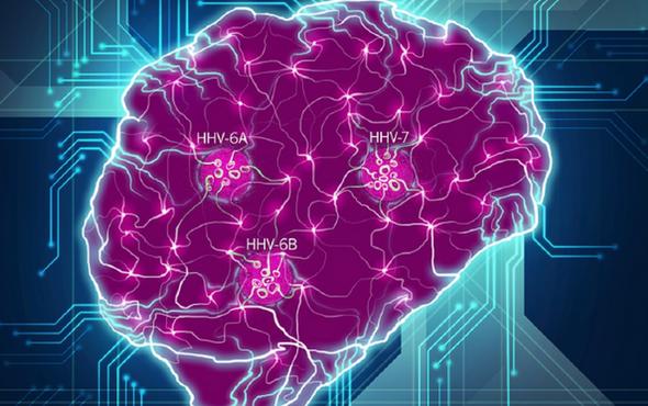 Alzheimer Hastalığında Virüsler Etkili mi?